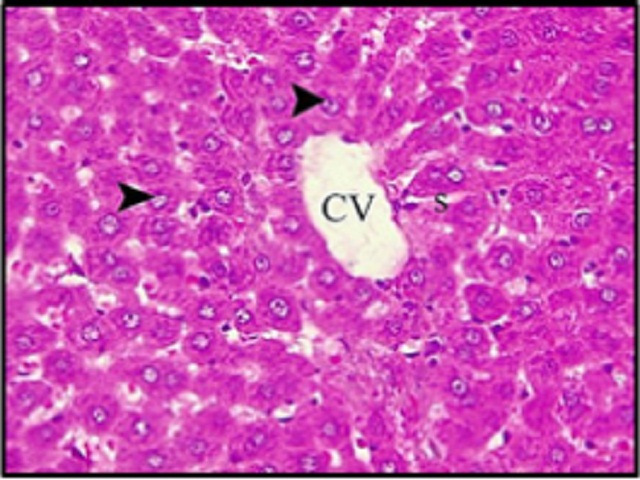 Photomicrographs of sections of the liver from adult male rats in different groups